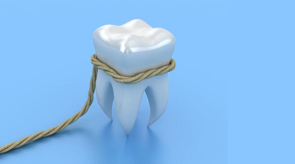 כתר שן